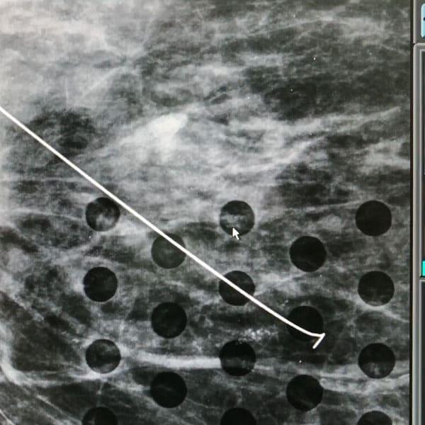 marcaj-tumoral-cu-harponul-asistat-radiologic-2