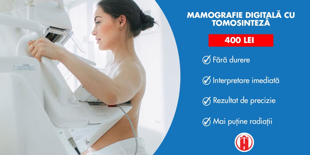 Mamografie digitală cu tomosinteză